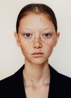 Imagen de beauty, freckles, and model