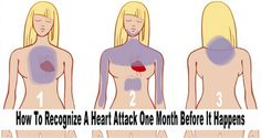 7 Early Signs Of Heart Attack You Should Know To Save Your Life – Native History Online