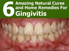 Gingivitis is a type of gum disease characterized by redness, irritation and swelling. This condition can be quite mild so many people in the early stages...