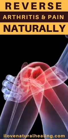 Looking for ways to get rid of arthritis and pain naturally? Watch this video and discover how to reverse arthritis and pain Naturally.