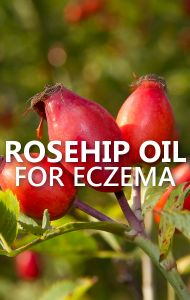 Dr Oz says Rosehip Oil is an all-natural way to treat many skin conditions, including eczema and psoriasis. Contact Dermatitis Treatment, Causes Of Cellulite, Reduce Cellulite, Oils For Eczema, Psoriasis Cure, Rosehip Oil, Health And Wellness, Beauty