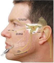 Facial pain associated with