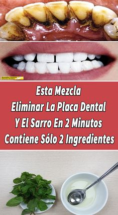 eliminarlaplacadental,RemediosCaserosNaturalesEfectivos-Enjoy the videos and music you love, upload original content, and share it all with friends, f Health Remedies, Home Remedies, Remedies For Tooth Ache, Dental Care, Teeth Whitening, Body Care, Health Tips, The Cure, Vegan Recipes