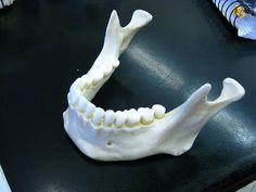 human jaw bone - Google Search
