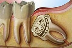Dos and Don'ts to help you recover after wisdom tooth extraction.