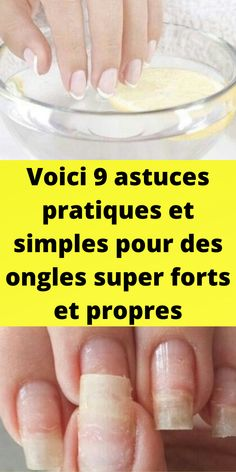 Semi Permanent, Migraine, Nail Art, Beauty, Forts, Home Remedies, Grow Long Nails, Wrinkle Remover, Organic Skin Care