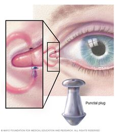 Dry eyes - Diagnosis and treatment - Mayo Clinic What Causes Dry Eyes, Eye Facts, Tears In Eyes, Eye Center, Self Treatment, Healthy Eyes, Vital Signs, Medical Spa, Plugs
