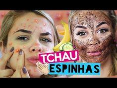 COMO ACABAR COM AS ESPINHAS SEM GASTAR NADA! - YouTube