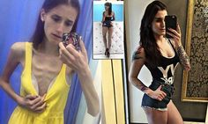Do you want to know about Vera, a Russian anorexic teen who overcame her eating disorder and became a fitness instructor? Teenager Training, Workouts For Teens, Interesting News, Trainers, Fitness, Dresses, Fashion, Tennis, Vestidos