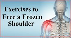 Last updated Wednesday January 25 2017 What Is Frozen Shoulder, Frozen Shoulder Pain, Frozen Shoulder Exercises, Shoulder Rehab Exercises, My Shoulder Hurts, Frozen Shoulder Treatment, Back Pain Exercises, Shoulder Workout, Shoulder Stretches