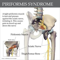 Piriformis Syndrome and sciatic pain. A great chart for understanding why stretching and myofacial release can help with this pain psoas pain relief Sciatica Pain Relief, Sciatic Pain, Sciatic Nerve, Nerve Pain, Back Pain Relief, Femoral Nerve, Spinal Nerve, Piriformis Muscle, Yoga Anatomy