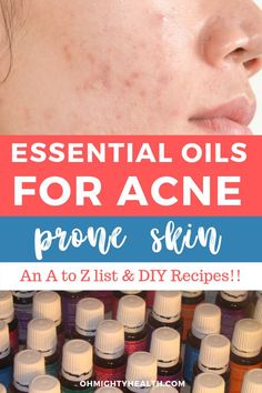 This is comprehensive entry on all the essential oils for acne prone skin (and oily skin) that can help you combat your condition. I added some fabulous DIY recipes, hopefully you'l find something suitable for your skin! Essential Oils Pimples, Essential Oils For Skin, Therapeutic Grade Essential Oils, Sensitive Acne Prone Skin, Oily Skin Care, Best Skin Care Regimen, Skin Care Tips, Moisturizer For Oily Skin, Facial Cleanser