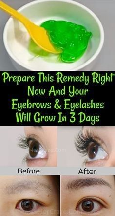Beauty Discover Prepare This Serum Right Now And Your Eyebrows And Eyelashes Will Grow In 3 Days - Eye Makeup Beauty Tips For Face Beauty Hacks Beauty Care Beauty Skin Diy Beauty Face Tips Face Beauty Beauty Guide Natural Beauty Tips Beauty Tips For Face, Beauty Hacks, Beauty Care, Diy Beauty, Face Tips, Beauty Guide, Face Beauty, Beauty Secrets, Homemade Beauty