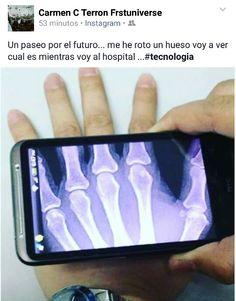 Radiografías con #smartphones #tecnologia