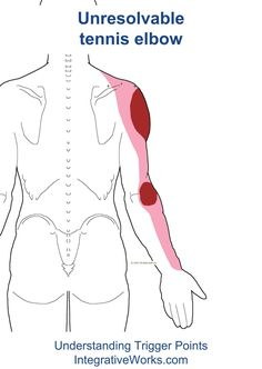 People complain about tennis elbow that bothers them even though theyve tried many different things around the elbow to get relief.They usually dont talk about the shoulder problem Tennis Elbow Relief, Tennis Elbow Symptoms, Tennis Elbow Exercises, Elbow Stretches, Stretching Exercises, Shoulder Trigger Points, Tennis Lessons For Kids, Forearm Workout At Home, Tennis Arm