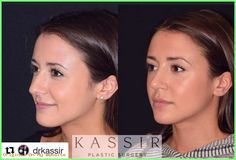 Perfect Rhinoplasty - Ramtin Kassir with our beautiful patient wanted to make chan. Bulbous Nose, Nose Reshaping, Wide Nose, Rhinoplasty Before And After, Long Faces, Vegan, Plastic Surgery, Beauty Trends, Lose Weight