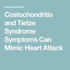 tietze syndrome