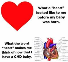 """So true! What CHD moms think of when they hear the word """"heart. Coarctation Of The Aorta, Atrial Septal Defect, Chd Awareness, Open Heart Surgery, Heart Month, Congenital Heart Defect, A Child Is Born, Heart Disease, Encouragement"""
