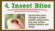 Allergic Reaction Hives - Allergic Reaction Hives Treatment - Hives Allergic Reaction