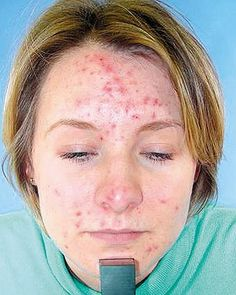 natural acne remedies Natural Cures For Pimples And Acne - These DIY, all-natural, at-home solutions will help fade and remove acne scars gently. Acne Treatment At Home, Natural Acne Treatment, Natural Acne Remedies, Home Remedies For Acne, Natural Cures, Acne Treatments, Spot Treatment, Beauty Tricks, Home Remedies