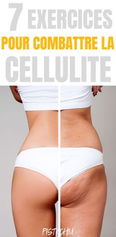 Cellulite is actually fat deposits just beneath the skin. It appears as lumps or dimples, usually near the buttocks and upper thighs, and is most common in women. Building muscle can make cellulite harder . Combattre La Cellulite, Causes Of Cellulite, Cellulite Exercises, Cellulite Cream, Cellulite Remedies, Reduce Cellulite, Aerobic Exercises, Cellulite Workout, Fitness Exercises