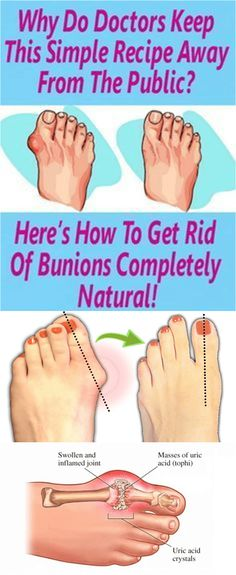 Bunions are actually salt deposits. Their formation is triggered by influenza, tonsillitis, gout, poor metabolism, improper nutrition, rheumatic infection and wearing uncomfortable shoes. Bunions a…