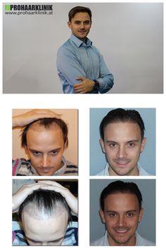 http://www.prohaarklinik.at/haartransplantation-vorher-nachher-bilder/  Haartransplantation für Manner - PROHAARKLINIK  Miklos hatte Glatzenbildung Probleme in seinen Schläfen = Zone 1 & 2. Die Haartransplantation Behandlung wurde mit langen Haaren gefertigt. Nur der Spenderzone wurde kurz geschnitten, Implantation lag zwischen langen Haaren. Hergestellt von PROHAARKLINIK.