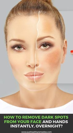 How to Remove Dark Spots from Your Face and Hands Instantly, Overnight? Natural Cough Remedies, Home Remedies, Healthy Herbs, Healthy Tips, Healthy Food, Eating Organic, Skin Care Treatments, Baby Oil, Health And Beauty Tips