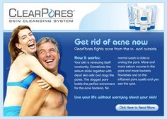 http://www.usawl.com/start-treating-acne-at-the-root-of-the-problem/