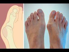 Как избавиться от косточки на ноге? Советы Елены Малышевой - YouTube