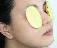 Natural Home Treatments For Puffy Eyes
