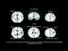 """""""Fibromyalgia: New Insights, New Hope"""" Part 1 Brain Scans Prove Fibromyalgia is real."""
