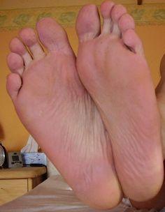varicose foot fool folk)