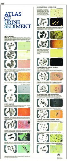 Atlas of Urine Sediment                                                                                                                                                                                 More