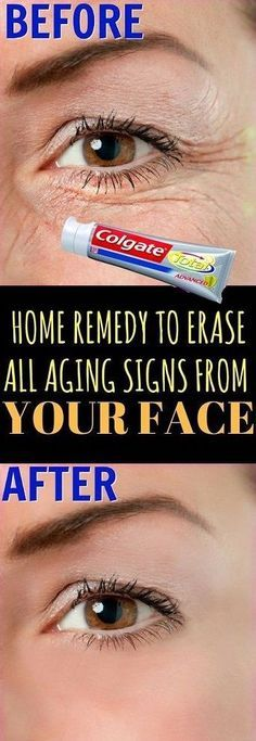 Who doesn't want youthful and younger looking skin? We know we all do. Aging is a natural process that catches hold of each one of us eventually, but we ourselves make things worse and speed up the aging process. Unhealthy life style, stress, over dependence on processed and ready to eat foods, caffeine, alcohol and …
