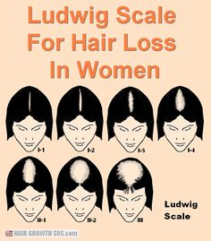 Androgenetic alopecia in women affects the same area as in men but usually causes thinning not baldness. Androgenetic Alopecia, Alopecia In Women, Shoulder Haircut, Natural Hair Regrowth, Male Pattern Baldness, Hair Thickening, Hair Loss Women, Stop Hair Loss