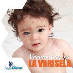 ¿Sabías que todos los niños de 1 año cumplido pueden acceder a la vacuna contra la #Varicela? Infórmate, Azules Médicas te cuenta https://www.youtube.com/watch?v=Cs3WON27mxg