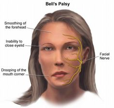 Bell's Palsy is linked with Migraine: Facial Paralysis