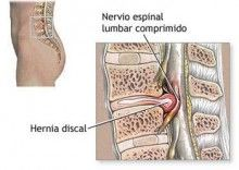 1000 images about l5 s1 hernia discal on pinterest discos lower backs and sciatica - Ejercicios en piscina para hernia discal l5 s1 ...