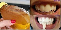 Dişleri beyazlatmak aslında bu kadar basitmiş. Gülümsemeniz daha da güzelleşsin