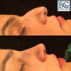Nose Plastic Surgery, Nose Surgery, Celebrity Plastic Surgery, Bad Nose Jobs, Bulbous Nose, Pretty Nose, Lighten Skin Tone, Nose Shapes, Cosmetic Procedures