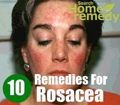 Rosacea is a chronic skin condition. This problem may cause a lot of embarrassment to an individual. Rosacea is commonly found in individuals having fair ...