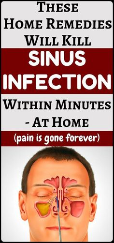Sinus Infection Treatment: 10 Home Remedies - Amazing health and fitness and home remedies. Natural Health Remedies, Natural Cures, Natural Healing, Herbal Remedies, Natural Treatments, Cold Remedies, Sleep Remedies, Natural Foods, Holistic Remedies