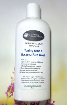 Organic Rosacea Apple cider vinegar Toner and face wash in one! Etsy.com/shop/BekksEssentials #RosaceaHelp,TipsandAdvice