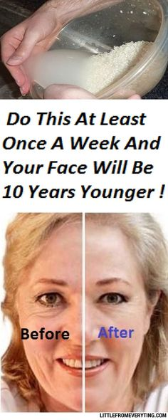 Are you fed up with the fine lines and wrinkles on your face which make you look older? The aging process often makes the facial skin dull. Sometimes due to dark spots and uneven skin, your face st… Beauty Care, Beauty Hacks, Diy Beauty, Too Faced, Younger Skin, Tips Belleza, Belleza Natural, Skin Treatments, Eye Treatment