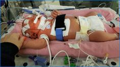 Mariana Sifrit, la bebé que contrajo meningitis viral