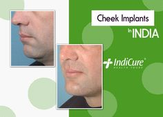 We are pleased to share one of our patients amazing results post his #cheekimplants in India. What do you think about the results? Comment below! #beforeafter #tuesdaytransformation #cosmeticsurgery #plasticsurgery #medicaltourism #throwback #bhfyp #likeforlike #follow #medicaltravel #medicaltourism Facial Implant, Cheek Implants, Face Plastic Surgery, Best Plastic Surgeons, Medical, India, Cosmetics, Amazing, Health