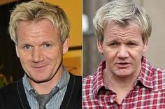 Gordon Ramsay's Hair Transplant | Before and After | Belvedere Clinic http://www.belvedereclinic.co.uk/blog/2014/10/29/celebs-reap-the-benefits-of-hair-transplants/