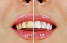 Natural, Health, Face, Tips, Baking Soda, Brushing, Stained Teeth, Brewers Yeast, White Teeth