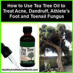 How to Use Tea Tree Oil to Treat Acne, Dandruff, Athlete's Foot and Toenail Fungus